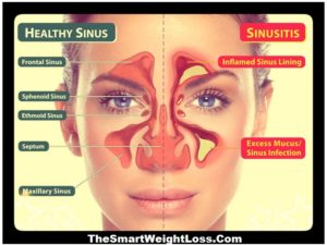 Common Causes of Sinusitis